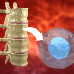 Therapy,With,Stem,Cells,Taken,From,The,Bone,Marrow,To